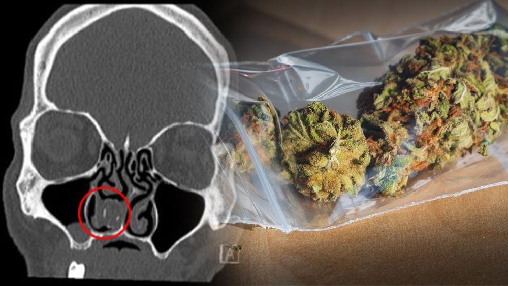 Marihuana znaleziona w nosie mężczyzny, który 18 lat wcześniej przemycił ją do więzienia